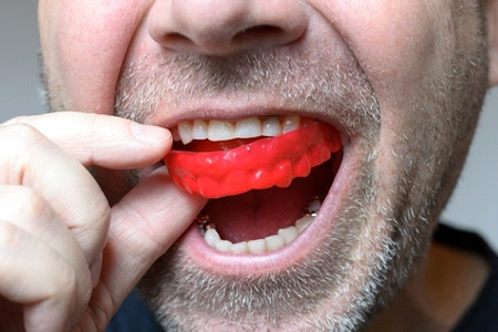 close up of man with short beard putting in red mouthguard