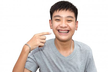 smiling teenage boy pointing to his traditional orthodontics in Mesquite