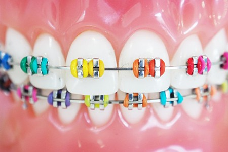 close up of braces with multicolored brackets